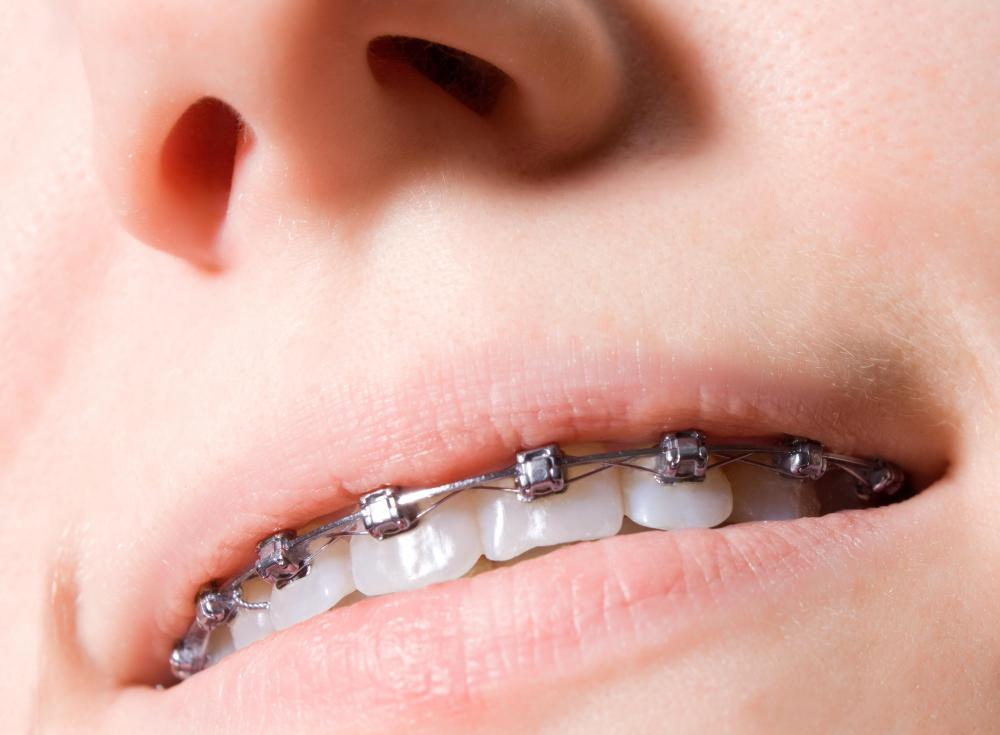 Dental braces may be used to correct an overbite.