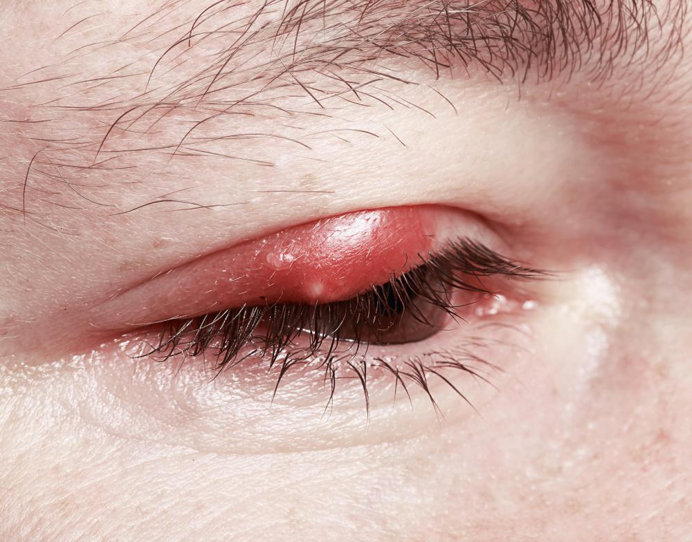 The presence of a stye can cause upper eyelid drooping.