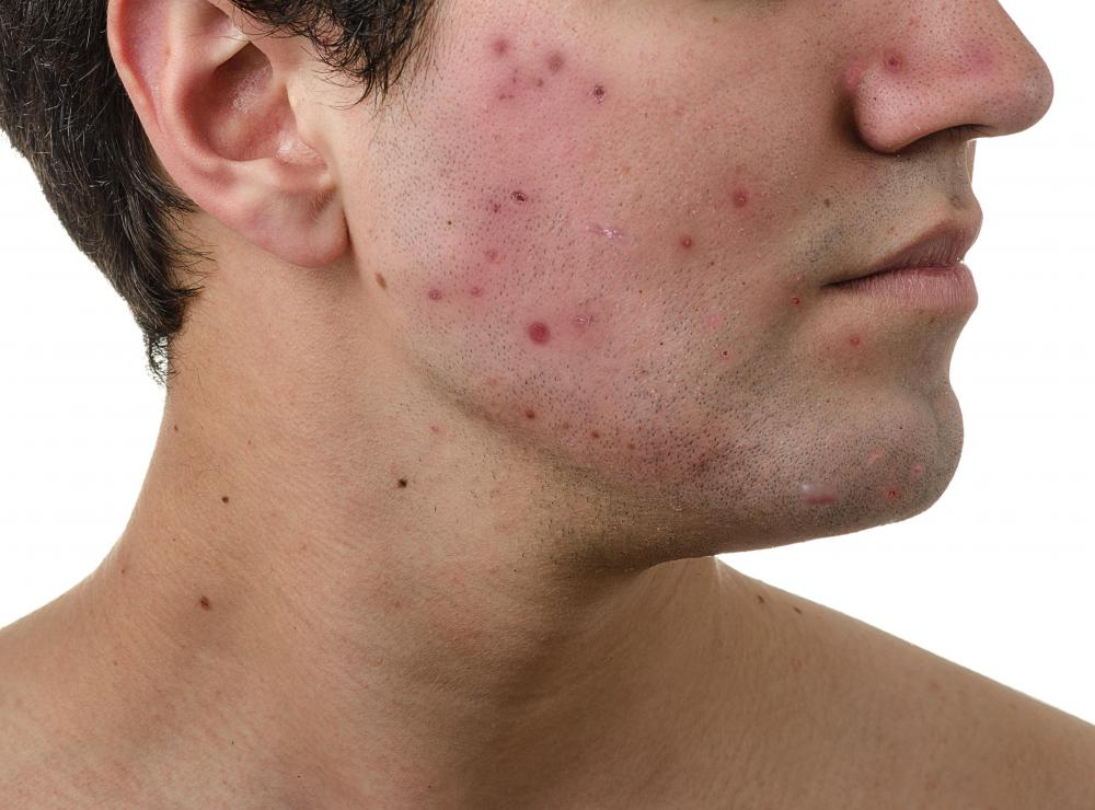 Acne may be a potential side effect of DHEA.