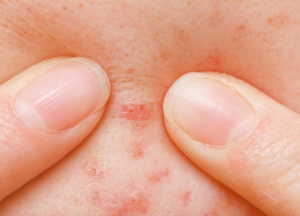 Topical salicylic acid can cause severe skin irritation.