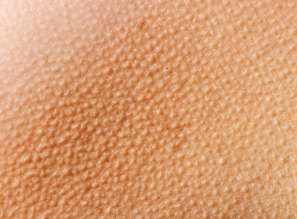 Goose flesh, also called goose bumps, is usually triggered by the nervous system when it's cold, during sexual arousal, or possibly when a person is infected with a disease.