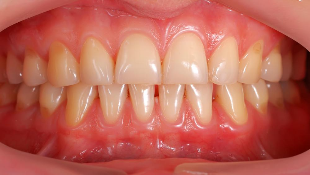 Gum grafts may be done to even out the appearance of the teeth and gums.