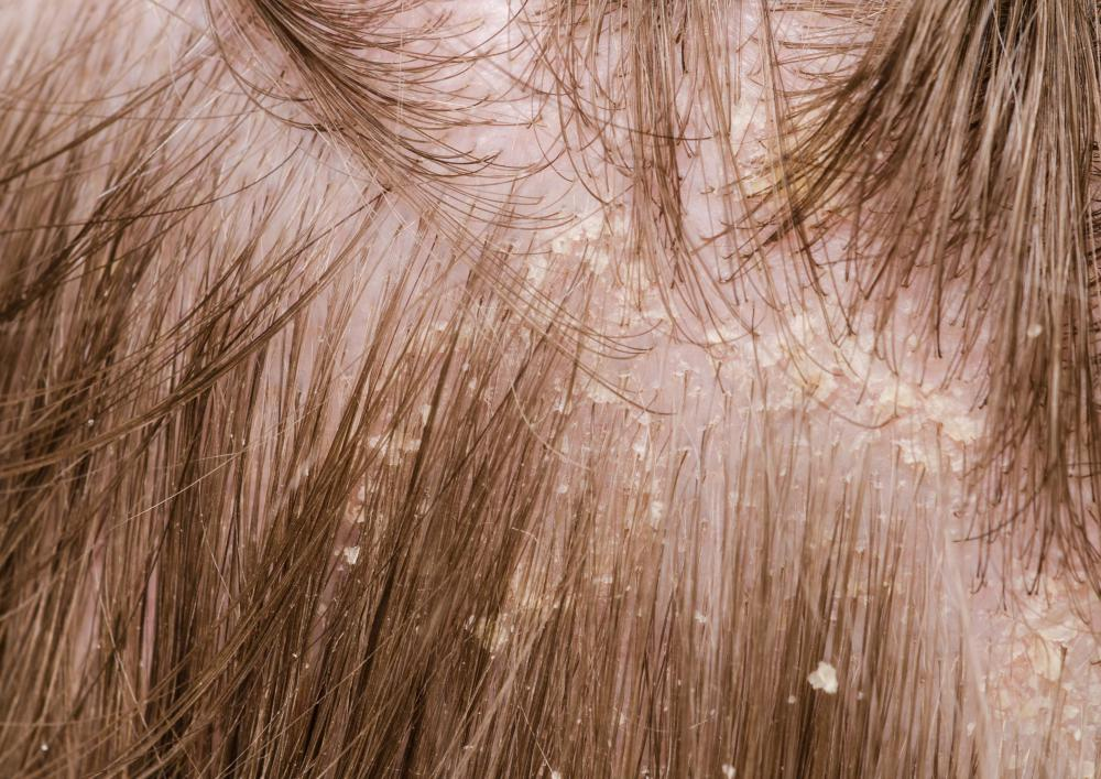 Visible white flakes of dry dead skin on the scalp are a sign of dandruff.