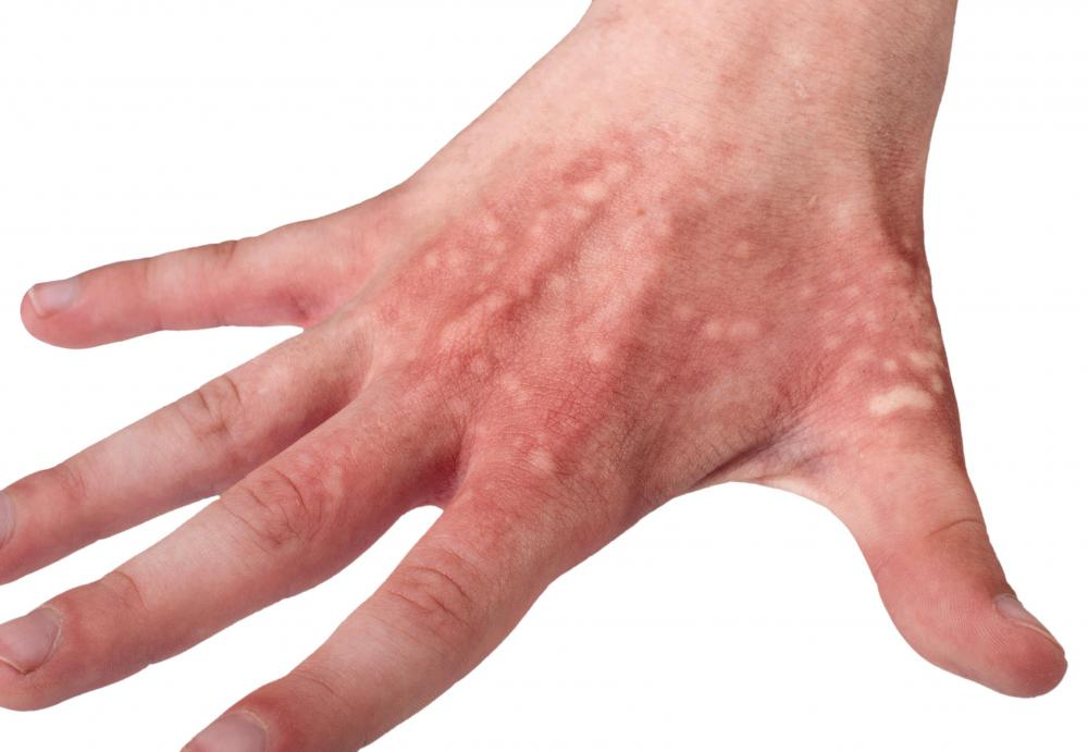 Small Itchy Clear Bumps - Skin Forum - eHealthForum