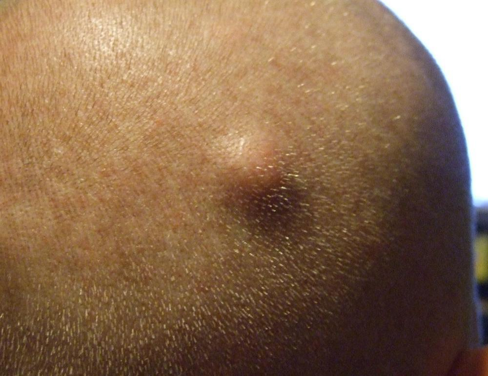 Sebaceous cyst: MedlinePlus Medical Encyclopedia