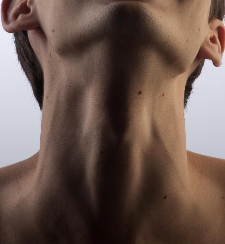 The left and right common carotid arteries divide at the top of the Adam's apple.