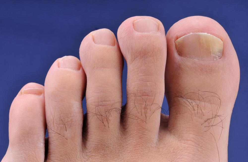 Fungus may become an issue with artificial toenails.