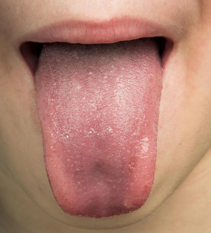 Nerve damage may result in numbness in the side of the tongue.