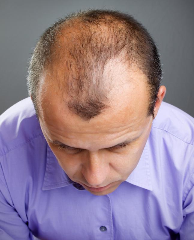 Male pattern baldness -- a receding hairline at the forehead and a bald patch at the back of the head -- can be caused by genetics and related to the hormone testosterone.