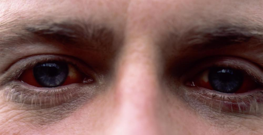 Prolonged use of artificial tears or eye drops that contain tetrahydrozoline hydrochloride can cause red eyes.