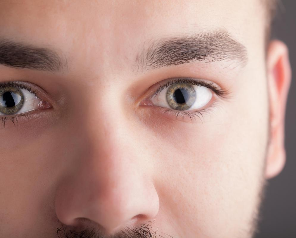 During an indirect ophthalmoscopy, a patient's eyes are usually dilated by using eye drops.