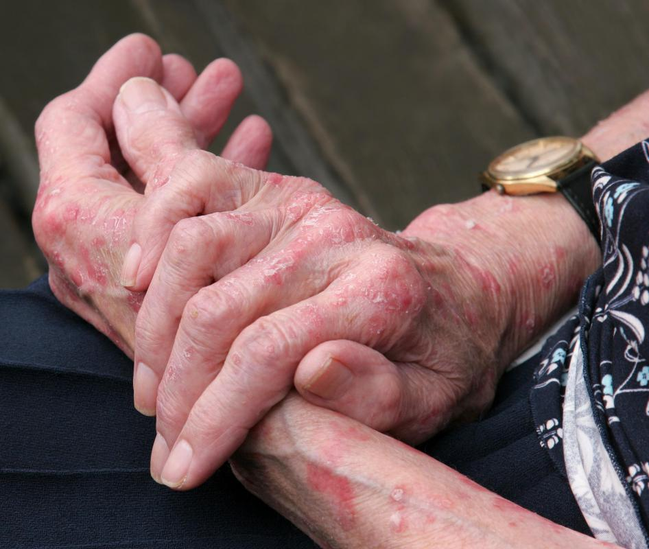 Elderly individuals may be particularly prone to eczema.