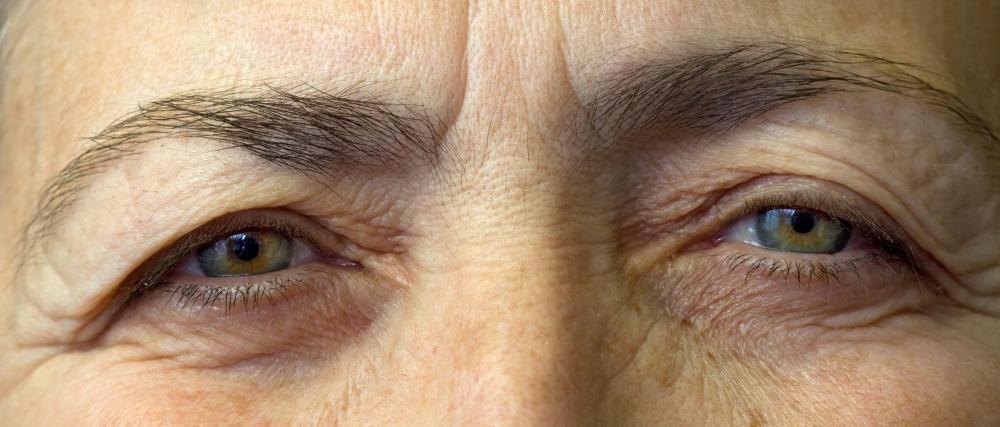 The natural aging process could lead to under-eye circles in some people.