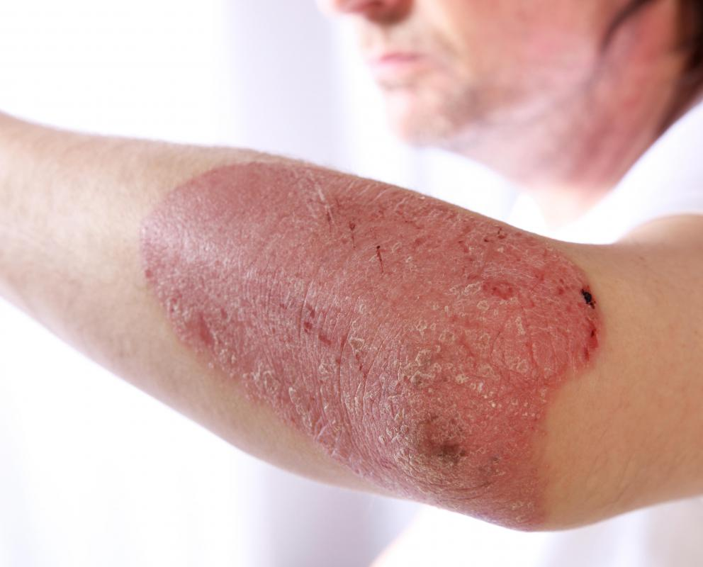 Psoriasis is an autoimmune skin disease characterized by itchy, red patches of skin that are often scaly.