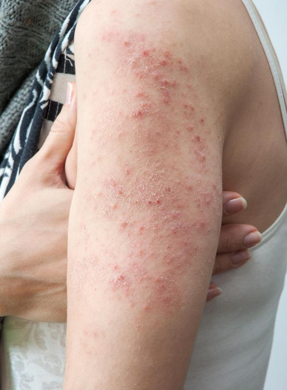 A poison ivy rash may appear as a red, itchy rash marked by bumps.