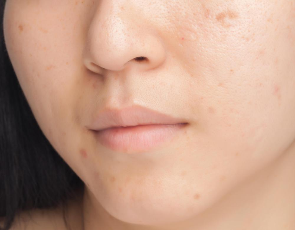 How Do I Choose The Best Hypertrophic Scar Treatment