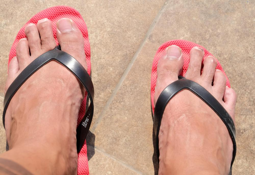 Flip flops are a popular style of shoe worn during the summer.