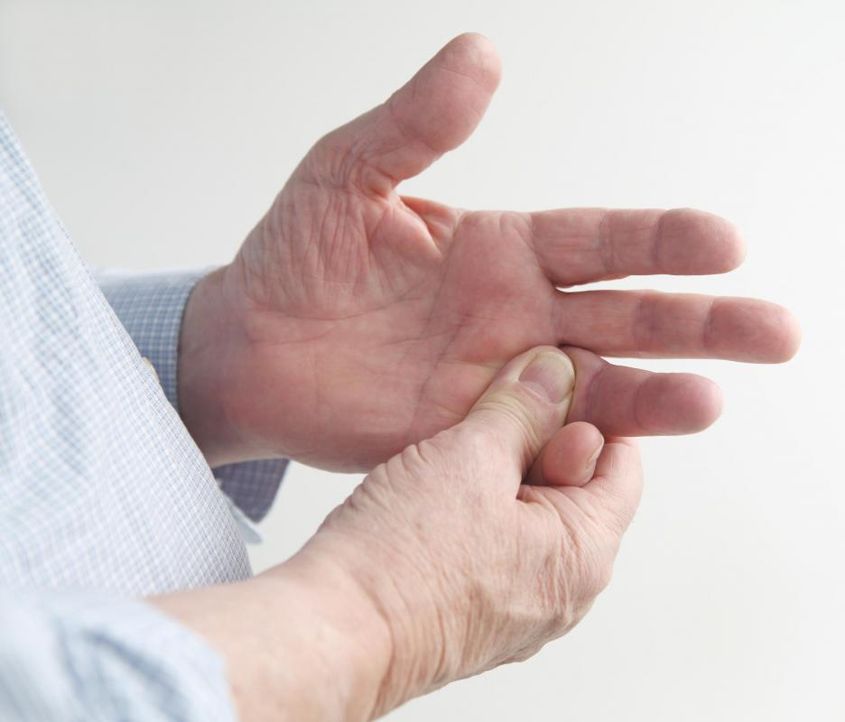 A benign growth may develop on the hands and cause discomfort.