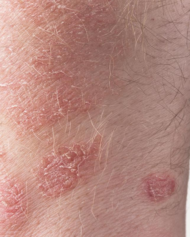 Skin conditions, such as psoriasis, are usually treated by dermatologitsts.