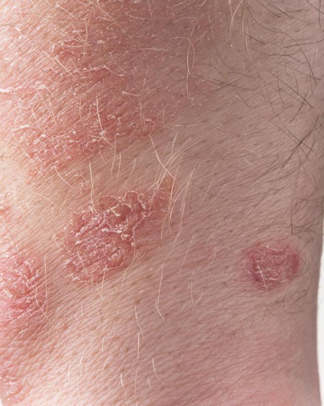 Hydrocortisone acetate may be used to treat psoriasis.