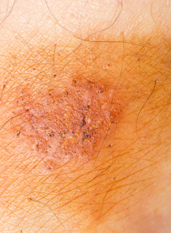 The earliest sign of Lyme disease is the characteristic Lyme disease rash, which appears between three and 30 days following infection.