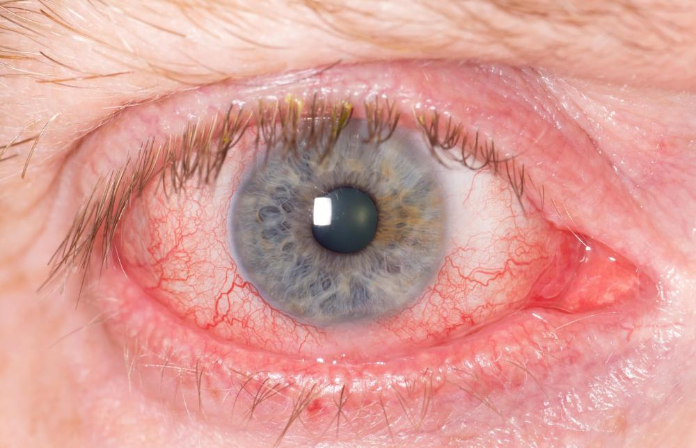 Blepharitis may cause bloodshot eyes.