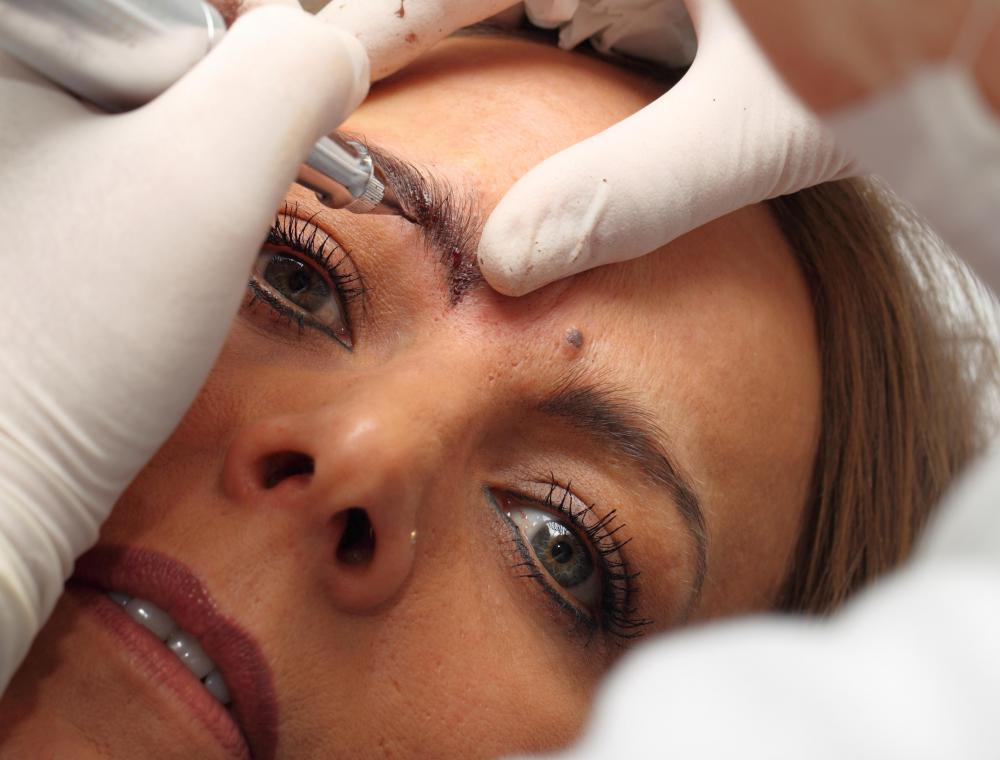 Cosmetic tattooing may be used to permanently simulate eyebrow pencil.