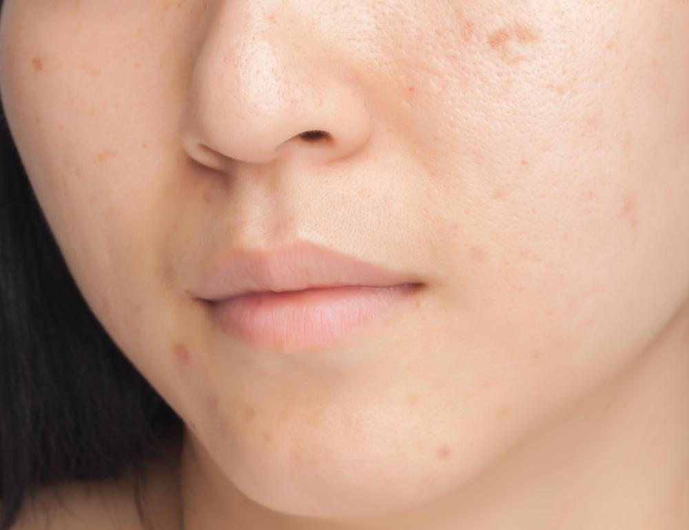 A complexion bar may be used to treat acne on the face.