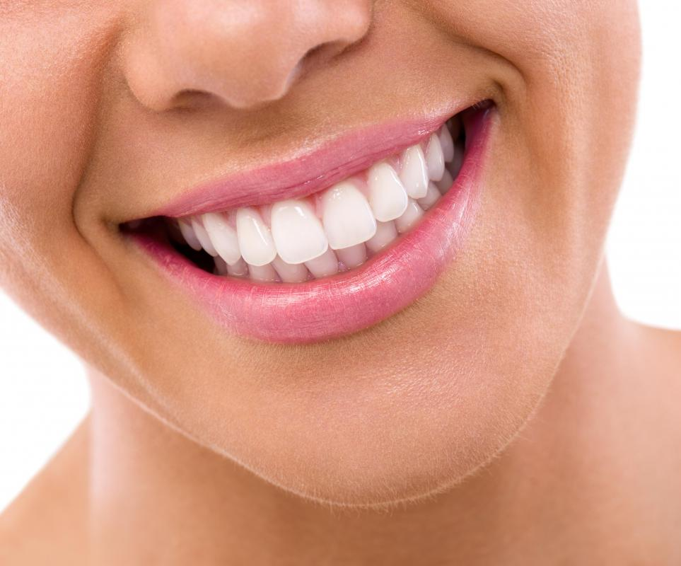 Chipped teeth can be repaired by applying crowns, veneers, or new fillings.