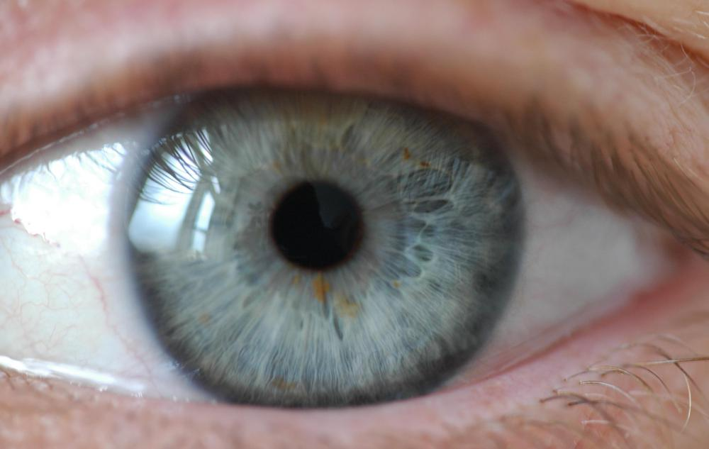 Normally, a person's pupils contract when light is bright, but eye doctors will usually use drops to dilate the pupils temporarily.