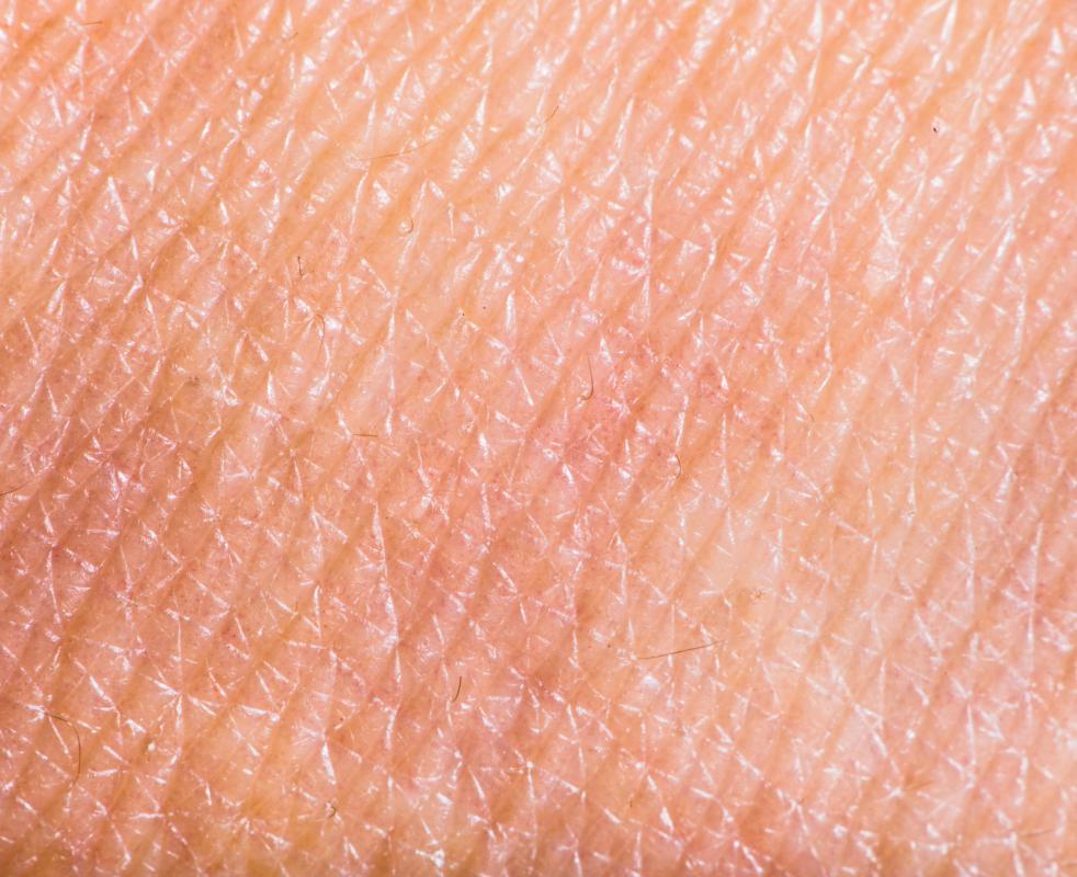 The skin is made up of the epidermis, dermis, and subcutaneous layers.