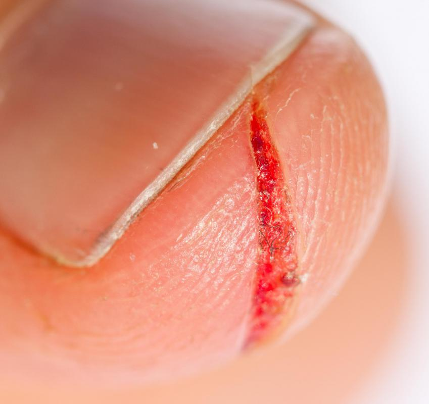 A paper cut refers to a slice in a person's skin caused by the handling of paper or a similarly thin material.