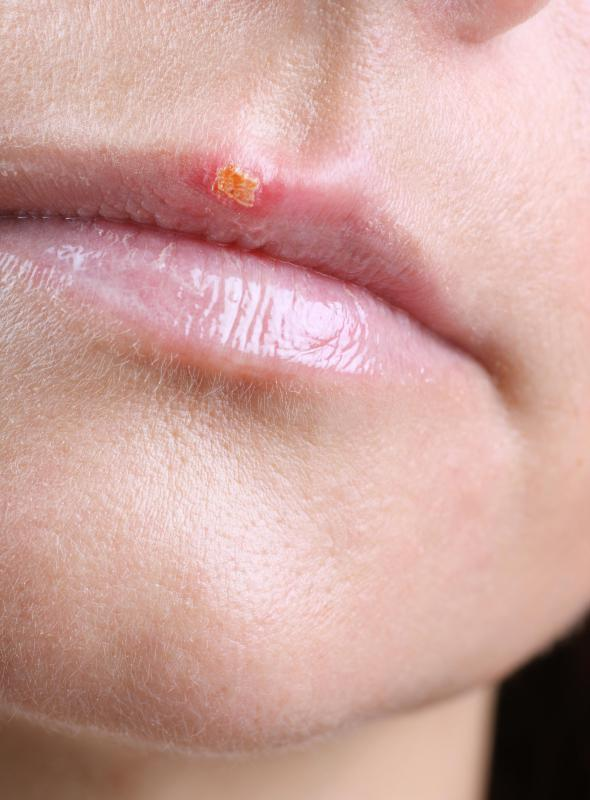 A cold sore on a lip.