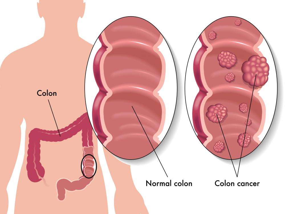 Individuals suffering from colon cancer have a higher risk of developing malignant ascites.