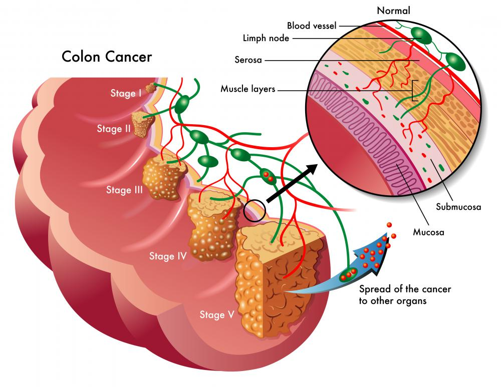 When adenocarcinoma of the colon first develops, it may not have any noticeable symptoms.