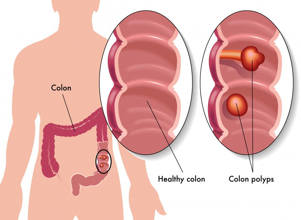 Risk factors for colorectal cancer include the development of colorectal polyps.