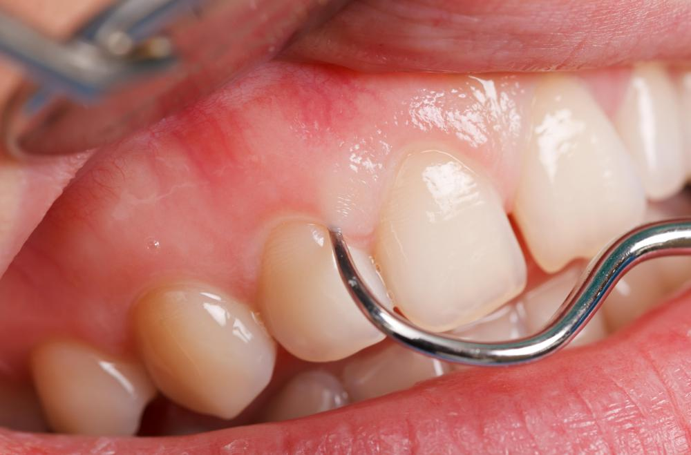 Aside from tender gums, scurvy can cause loosened teeth and swelling and bleeding in the gums.