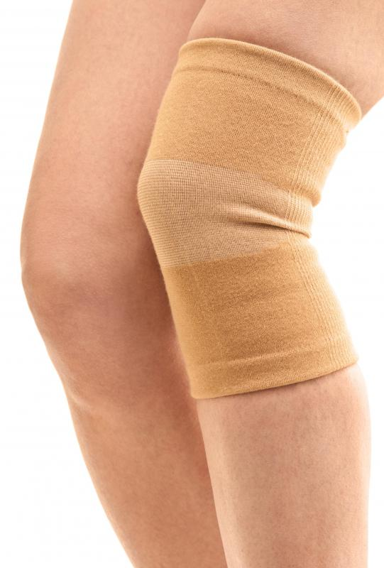 Compression garments may be worn to reduce swelling in the legs.