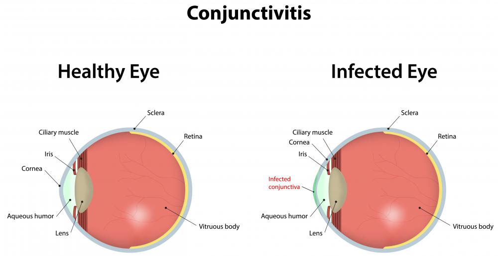 Conjunctivitis is an infection or inflammation of the clear, outer membrane of the eye called the conjunctiva.
