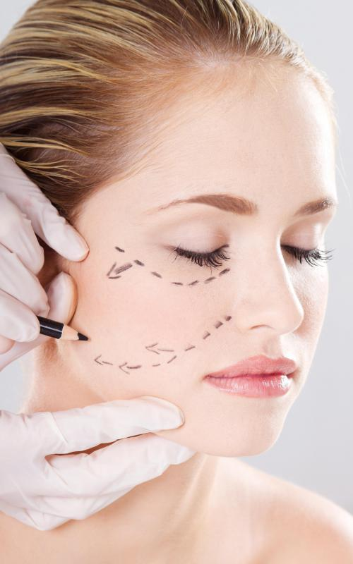 A cosmetic surgeon marking up a patient's face.