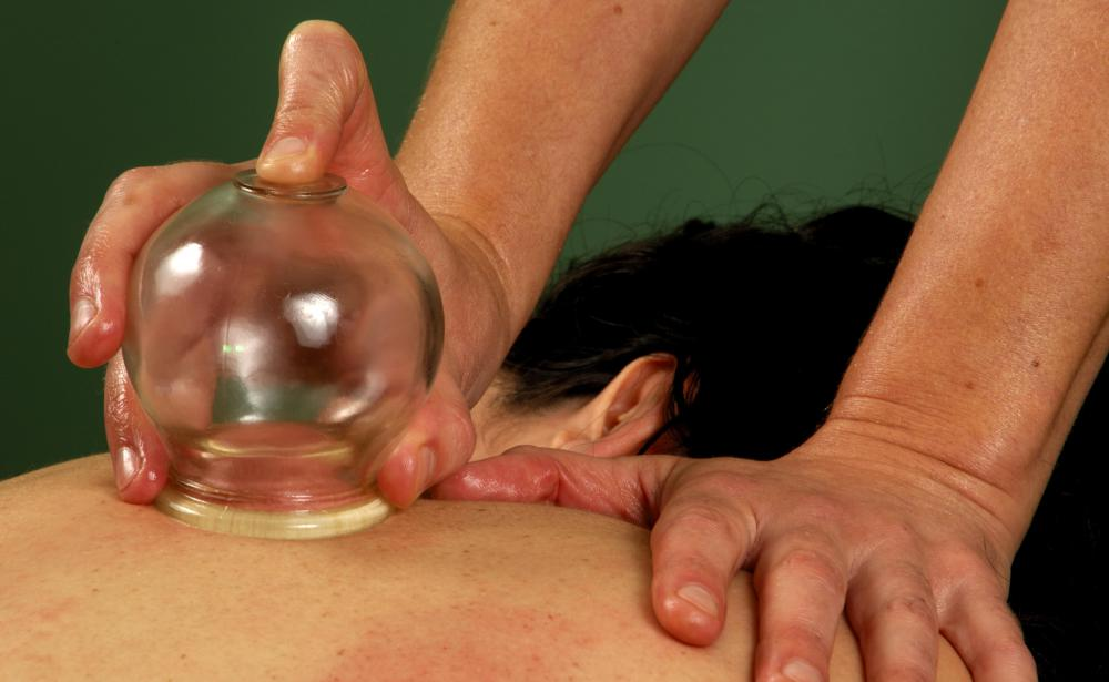 Hijama uses cups to create suction on the skin.