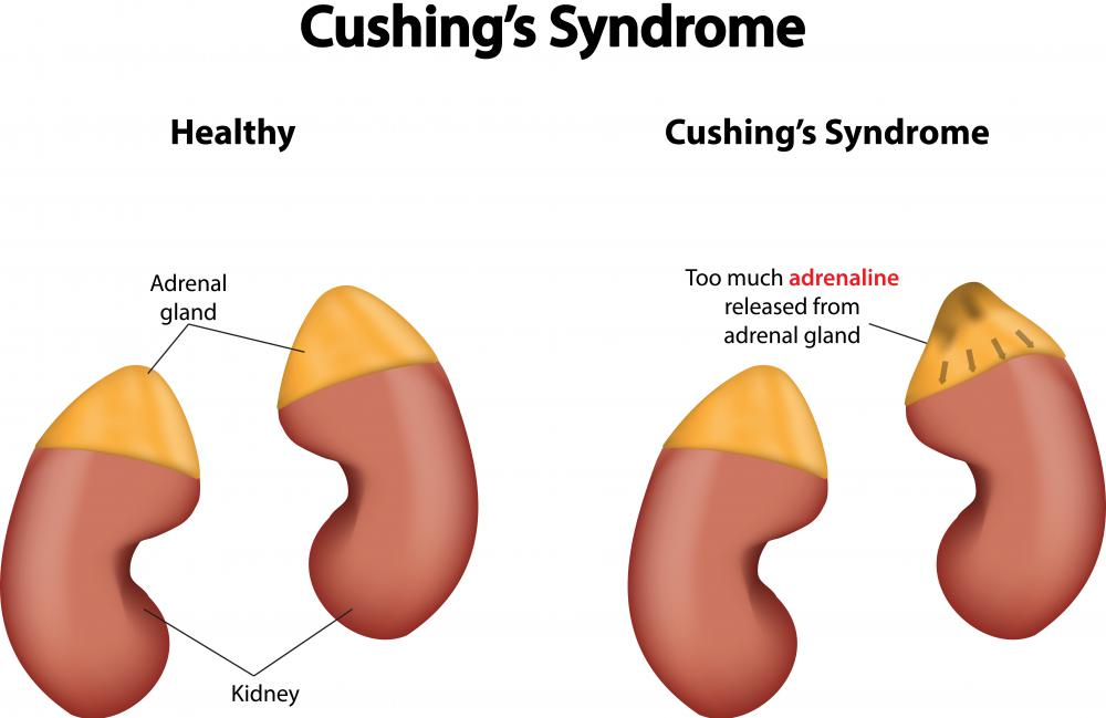 In Cushing's disease, a benign tumor forms in the pituitary gland and produces adrenocorticotropic hormone.