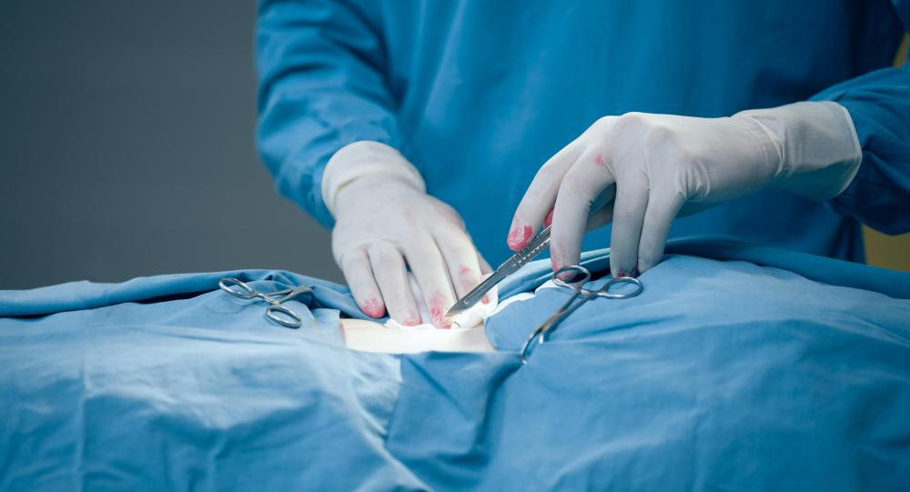 Surgical incisions will always cause pain because they cut through skin, and sometimes nerves, tissues, and muscles as well.