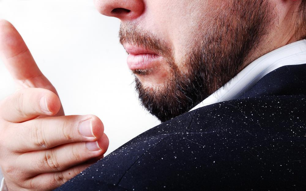 Dandruff, or flaky scalp, can be caused by a variety of conditions.