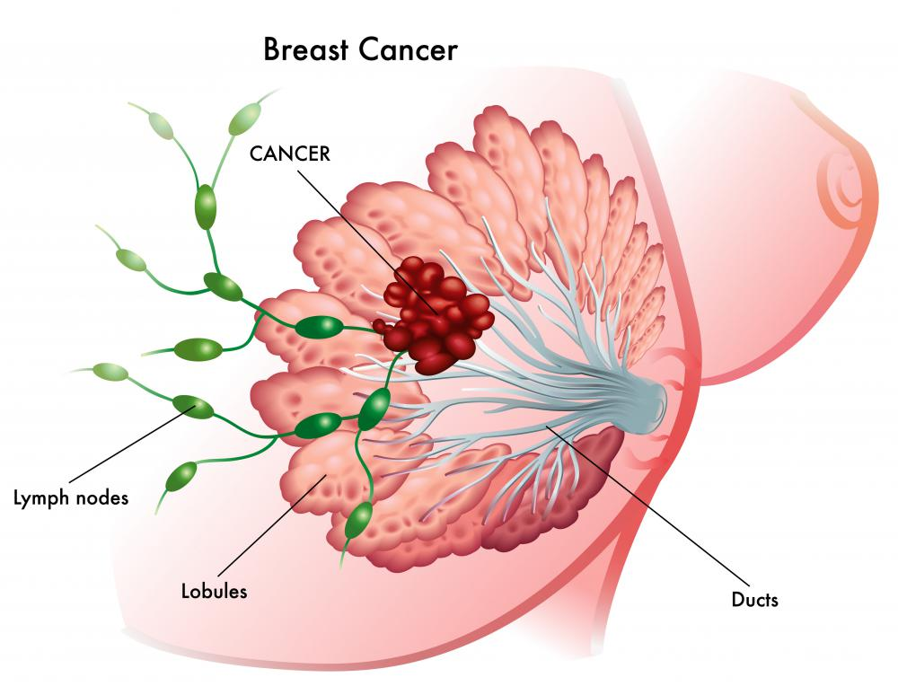 Breast cancer staging is based on how large the breast cancer tumor is and how far it has spread to other parts of the body.
