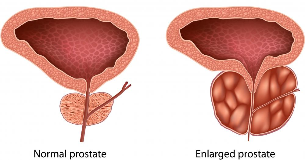 Elevated levels of DHT can cause an enlarged prostate gland.