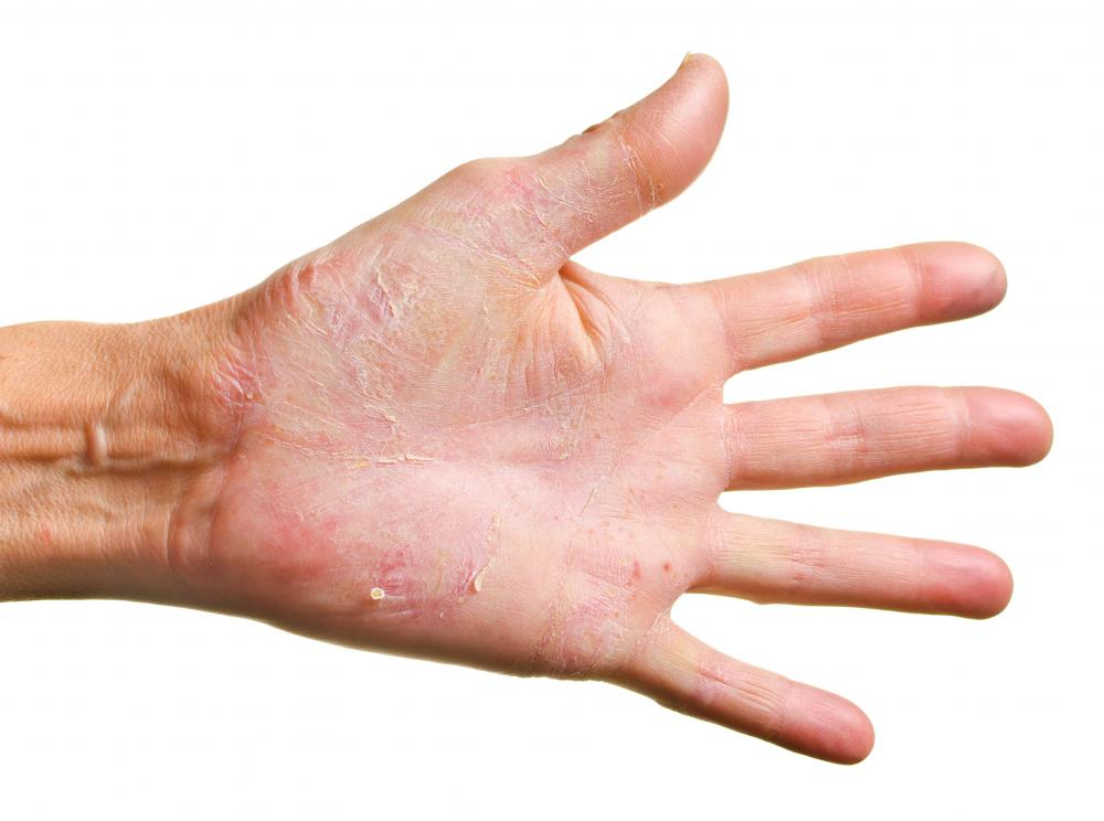 Dermatitis herpetiformis is common on the arms, legs and hands.