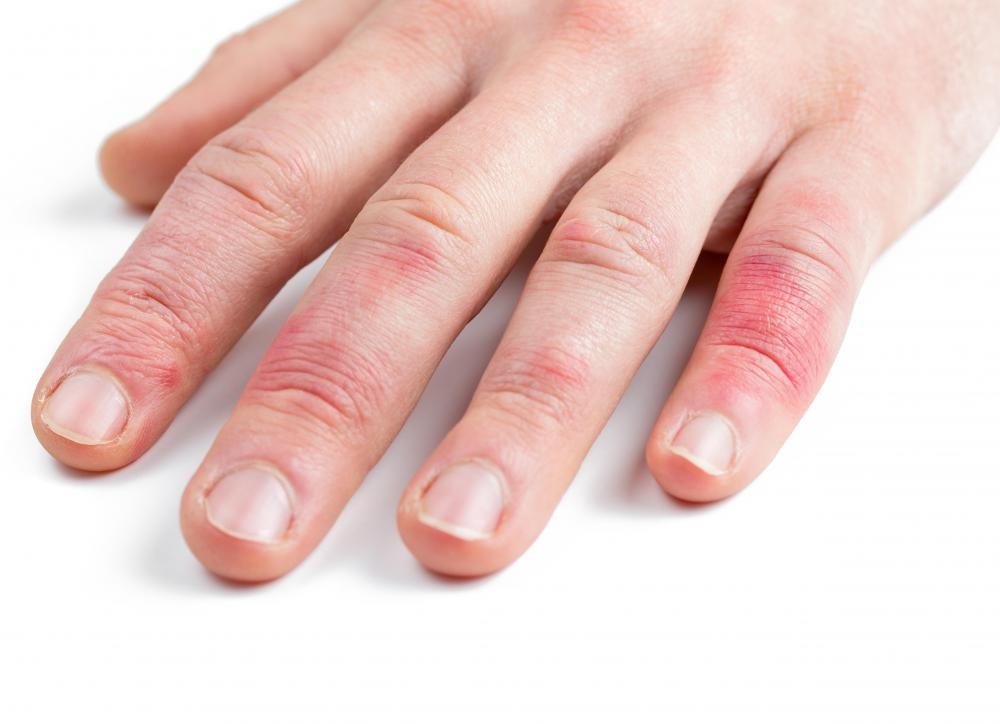Eczema can cause dry skin on the hands.