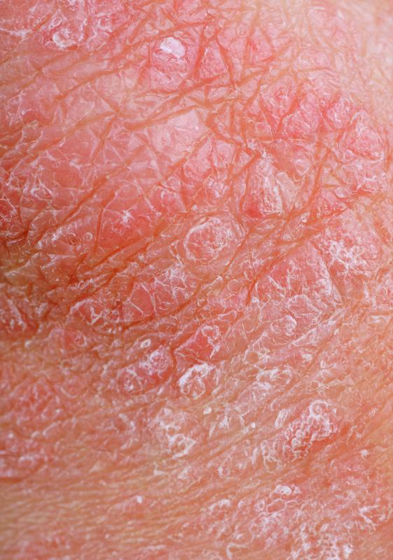 Penis Redness - Main Causes, Symptoms, and Treatment Methods