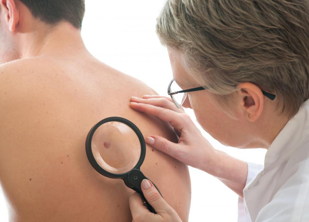 Dermatologists can perform diagnoses on moles.